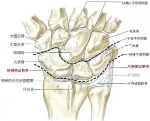 wrist_sprain
